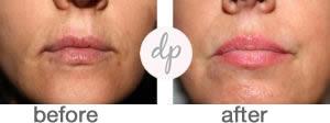 Soft Contour Lips 9-2