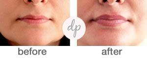Baby Lips 8