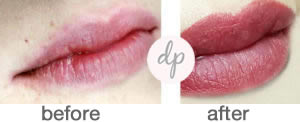 Bardot Full Lips 9