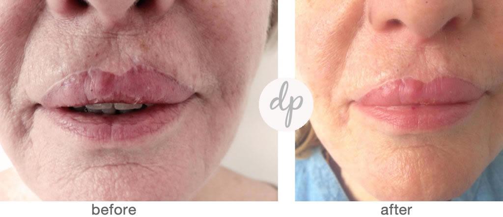 Bardot Full Lips 9-4