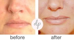 Soft Contour Lips 3