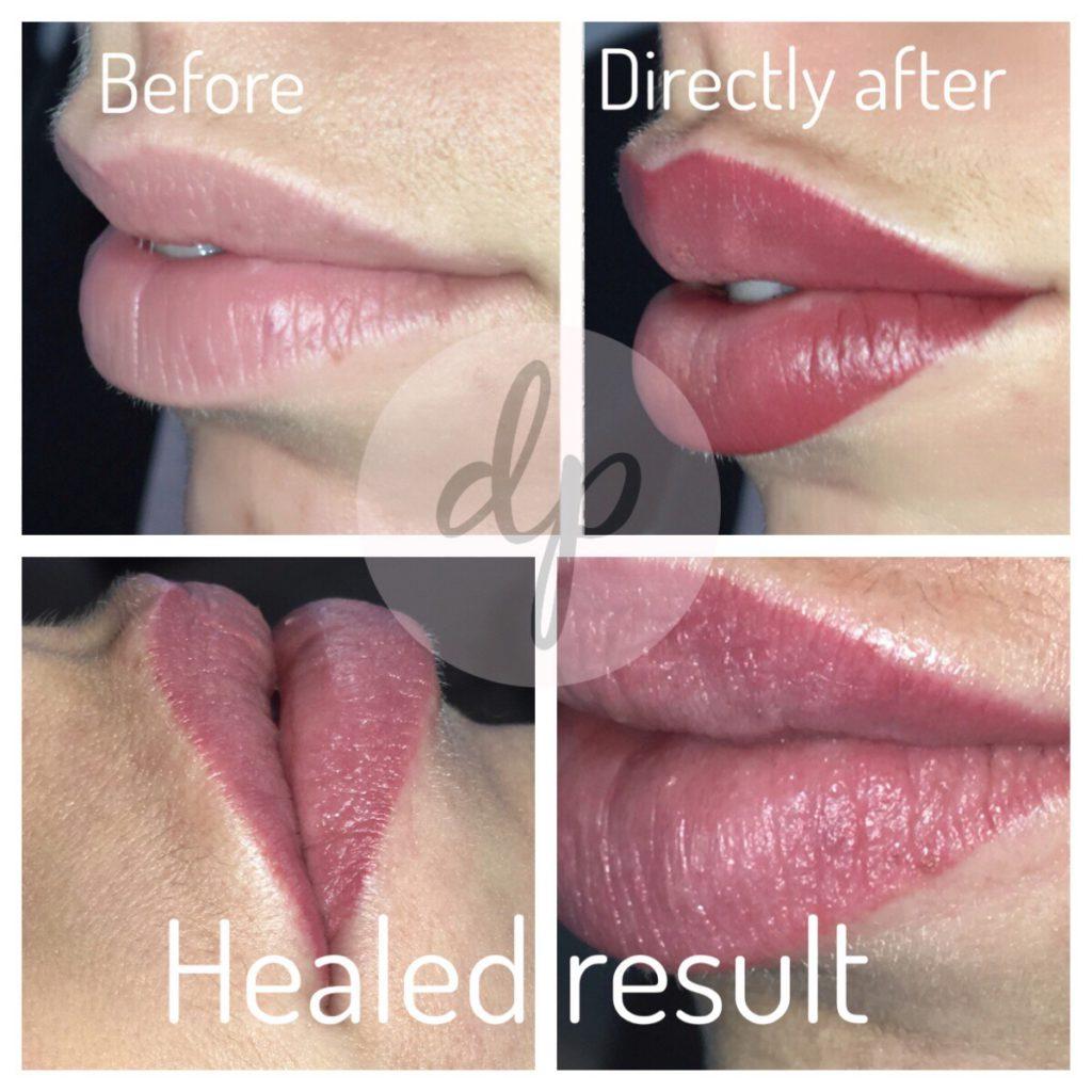 Bardot Full Lips 9-2