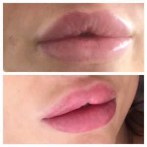 Bardot Full Lips 9-3