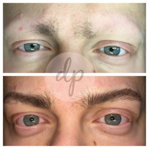Medische pigmentatie 7