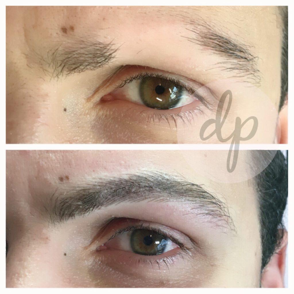 Medische pigmentatie 8