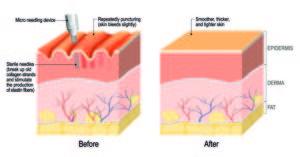 Microneedling by Dermatopigmentatie