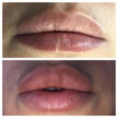 Baby Lips 9-3