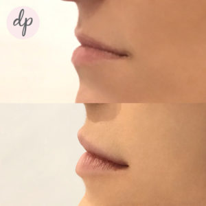 Fillers Lip
