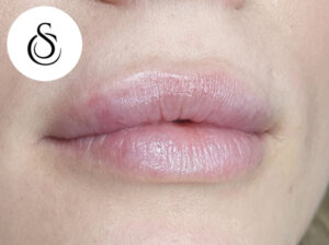 LipFillers 4