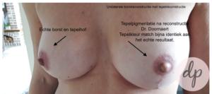 dermatopigmentatie tepeltatoeage