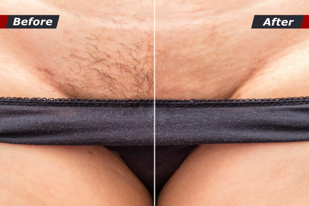 Bikini ontharing Sarasin clinic voor en na