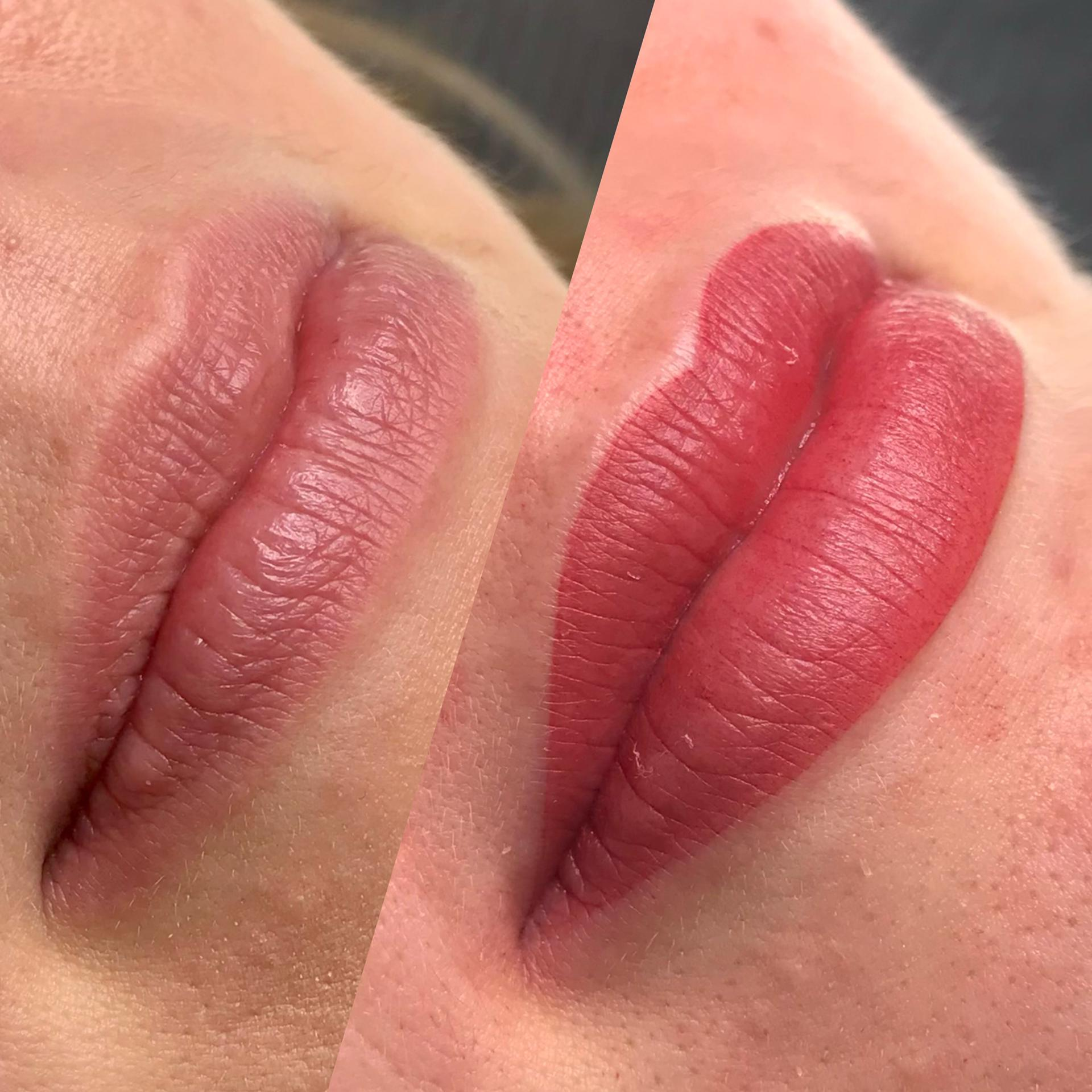 dermatopigmentatie bardot lips