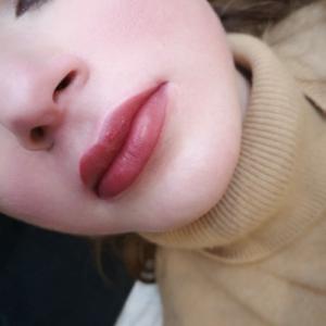 Dermatopigmentatie bardot lips 4