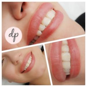 Dermatopigmentatie bardot lips 2