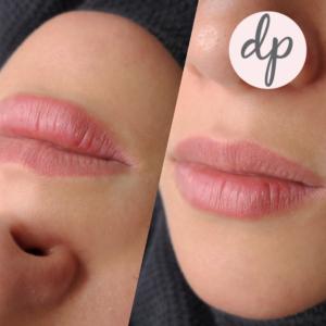 Dermatopigmentatie baby lips 3