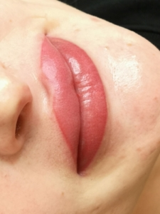 Dermatopigmentatie powder lips 5