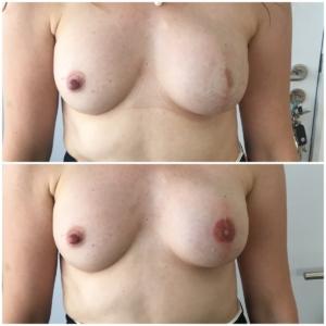 Dermatopigmentatie Tepelpigmentatie 2