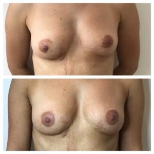 Dermatopigmentatie Tepelpigmentatie