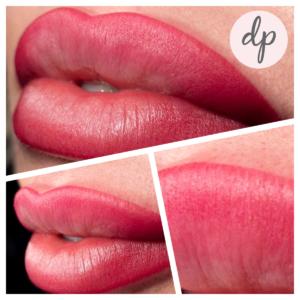 Dermatopigmentatie bardot lips 1