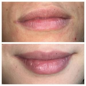Dermatopigmentatie Baby Lips