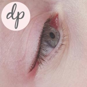 Dermatopigmentatie bambi-liner-1