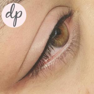 Dermatopigmentatie secret-liner-1