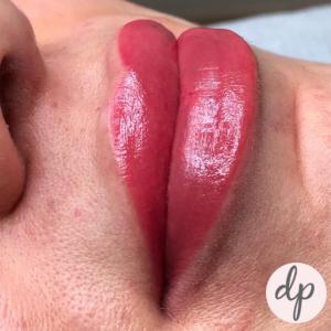 Fresh Bardot lips dermatopigmentatie