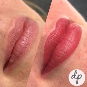 Fresh Bardot lips dermatopigmentatie 2