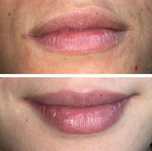 Semi permanente make-up voor je lippen