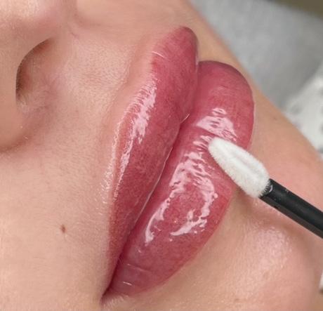 Dermatopigmentatie lippigmentatie Bardot Lips resultaat met lipgloss