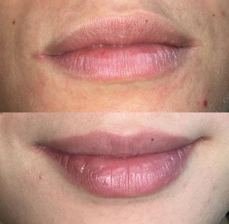 Dermatopigmentatie baby lips lippigmentatie voor en na resultaat