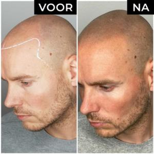 Dermatopigmentatie microhaarpigmentatie voor en na man zijkant links