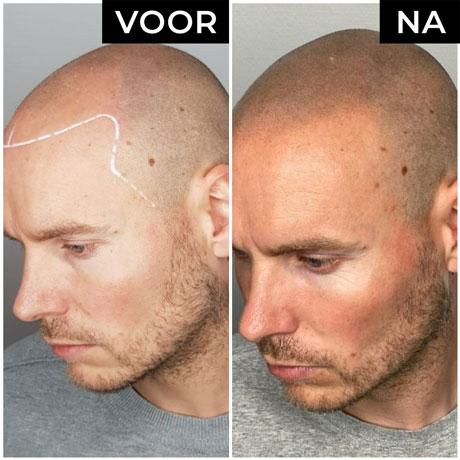 Dermatopigmentatie microhaarpigmentatie voor en na man