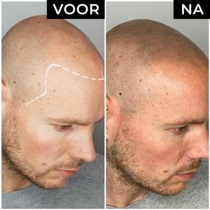 Dermatopigmentatie microhaarpigmentatie voor en na man zijkant rechts