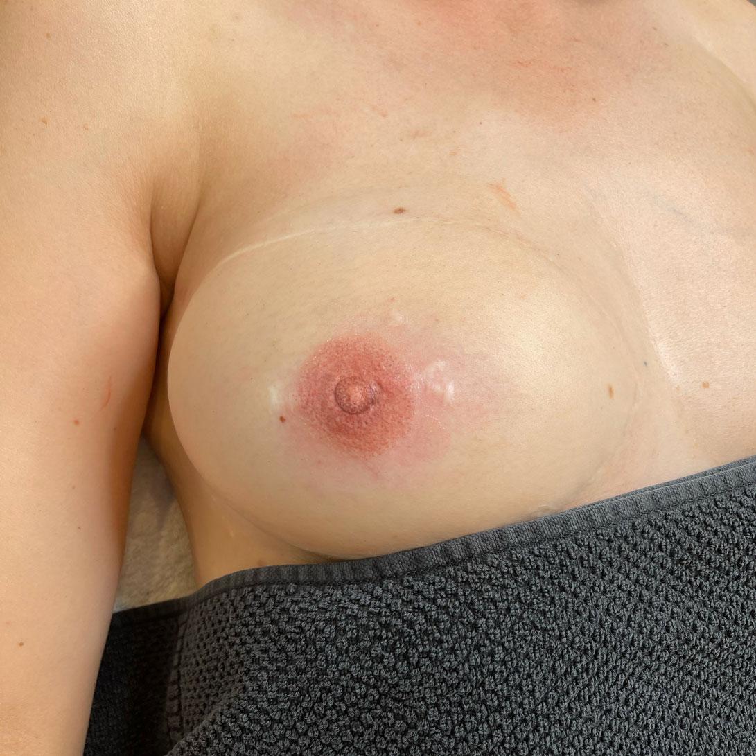 Dermatopigmentatie 3D tepeltattoeage