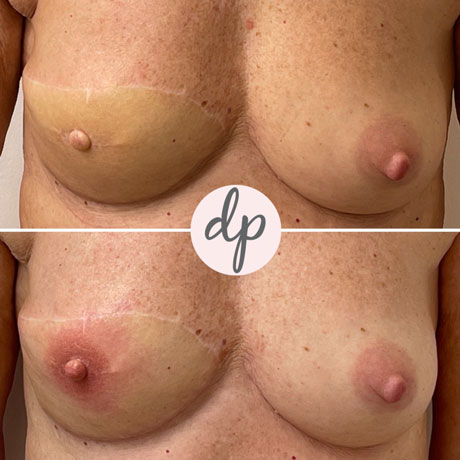 Dermatopigmentatie tepeltattoeage na borstreconstructie voor en na