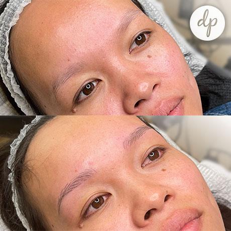 Dermatopigmentatie W-Brows voor en na vrouw