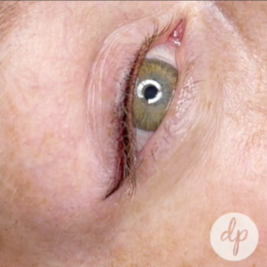 Dermatopigmentatie eyeliner Stardust video