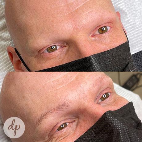 Dermatopigmentatie W-Brows man alopecia