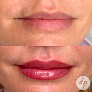 Wat is semi permanente make-up van de lippen?